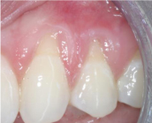 Gum recession Before